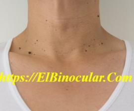 ¿Cómo Eliminar Las Verrugas De Las Manos Y Del Cuello Rápido?