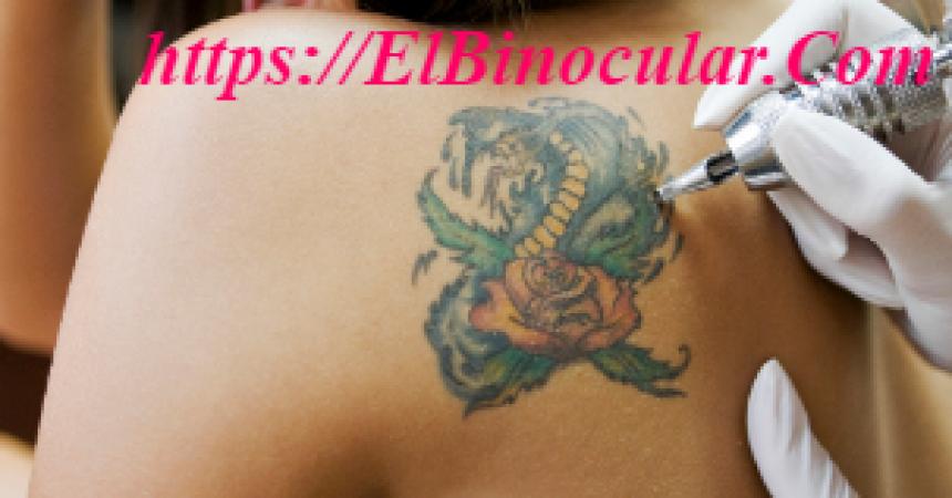 Cómo Curar Un Tatuaje Infectado En Casa